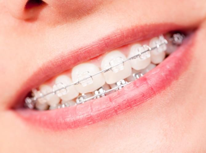 Zahnspange, Spange, Mund, Frau, Zähne, Zahn, weiß, sauber, Gesundheit, Hygiene, Brackets, brace, braces, Lippen, schön, glänzen, offen, Bürste, schräg, Regulierung, Person, Draht, Schönheit, Gesicht, Zahnarzt, offener, geöffneter, Zunge, Lachen, Lächeln, Pflege, Körperpflege, Mädchen, Zahnregulierung, zu, rein, saubere, klar, strahlend